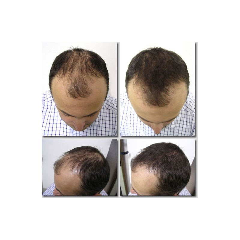 K-Max - poudre de cheveux naturelle