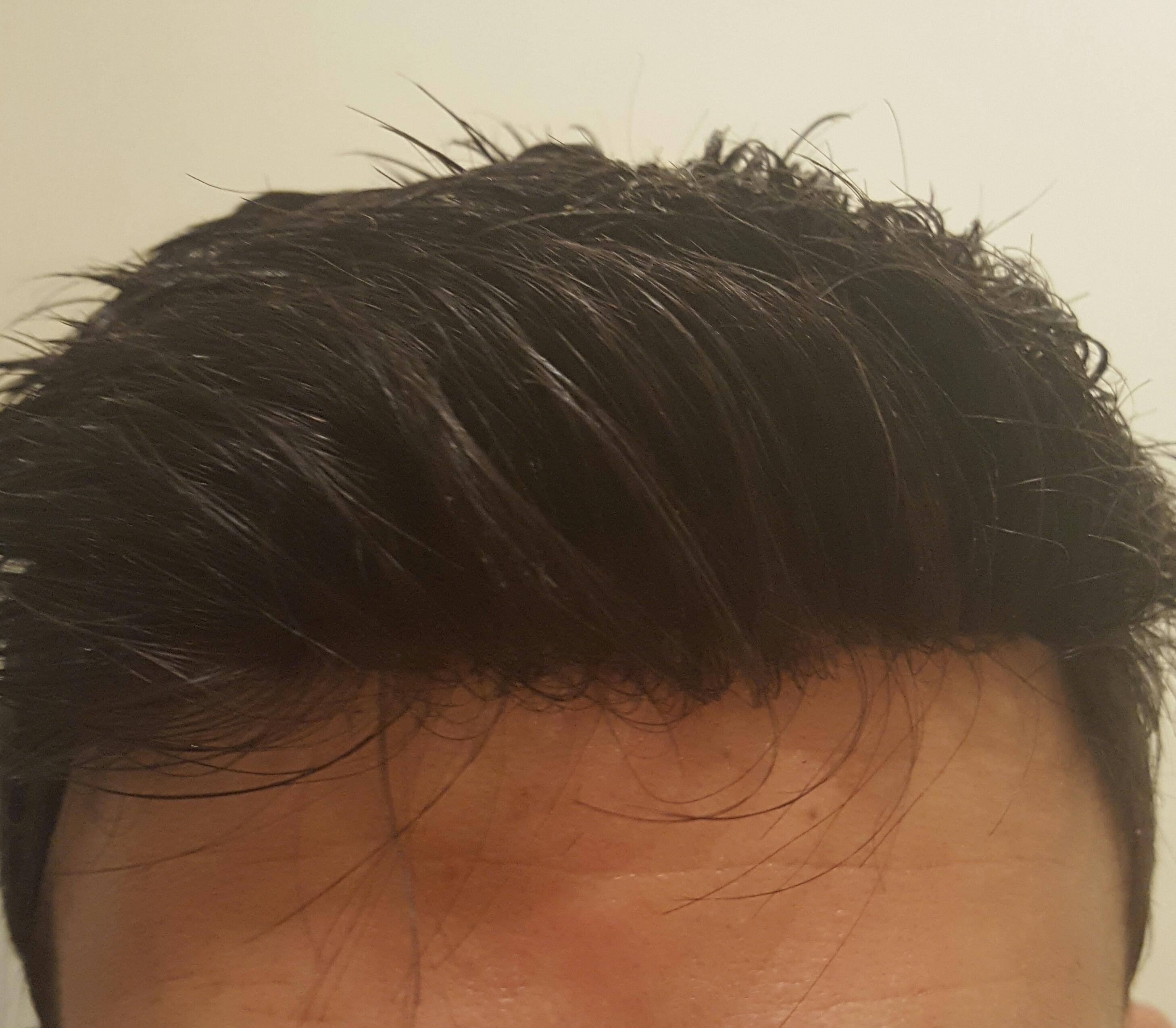 Devant - bordure frontale