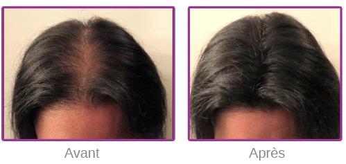 Résultat de la poudre de cheveux sur une femme