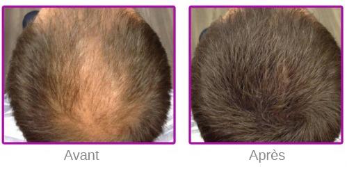 Résultat de la poudre de cheveux sur un homme