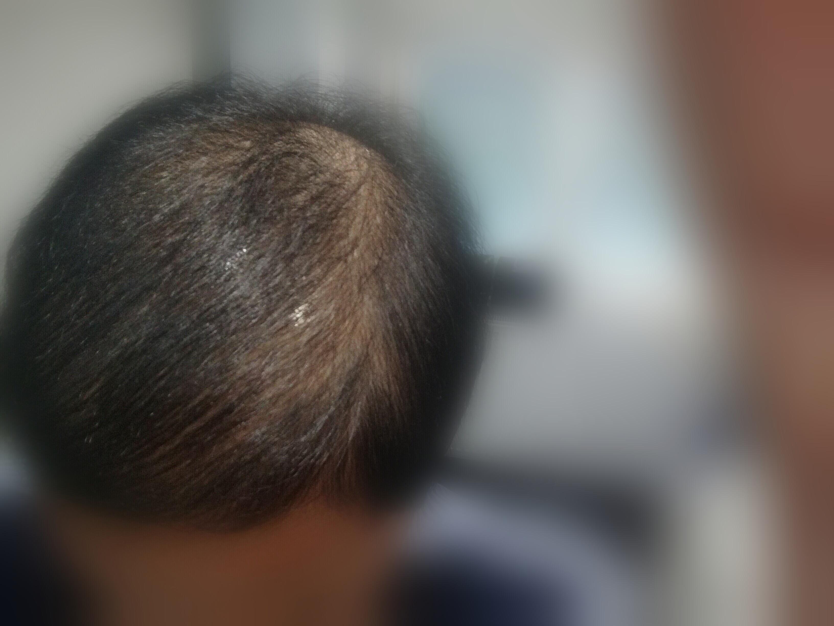 chute de cheveux chez la femme