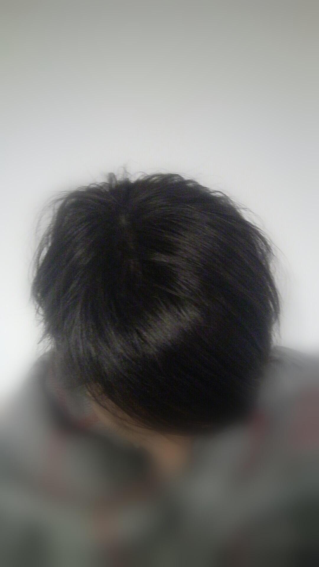 résultat femme de complément capillaire